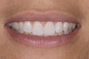 Veronica Veneers & Whitening S Post 005
