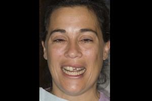 Veronica Broken Tooth F B4