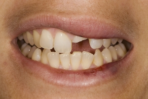 Veronica Veneers & Whitening S B4