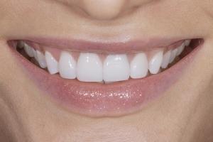 Viktoriya S Grey Tooth Crown After 4049
