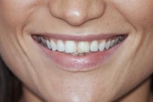 Viktoriya S Grey Tooth Crown  Before 3047