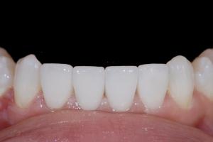Viktoriya Instant Orthodontics X121L After 066
