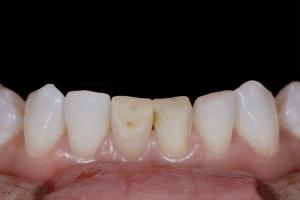 Viktoriya Instant Orthodontics X121L  Before 3560