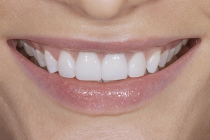Viktoriya Veneers S Post 4049 3
