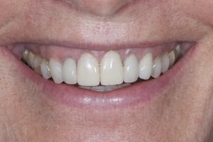 Vivian Braces Extrusion S  Before 2233