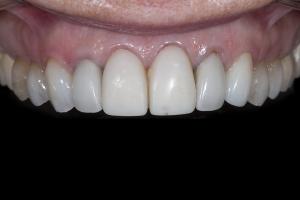Vivian Gum Leveling X121  Fefore 3104