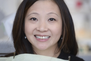 Wan Veneers & Orthodontics F  Before 5335