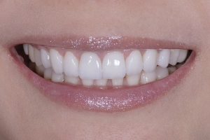 Wan Veneers & Orthodontics S Post 1215