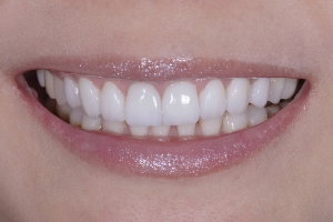 Wan S Grey Tooth Crown After 1215