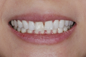 Wan Veneers S  Before 9473