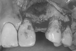 Will Implant Bone Graft Bone X BG 2 Post 6081