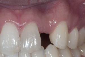 Will Implant Bone Graft Bone X BG 4 B4 5126 Crop 2