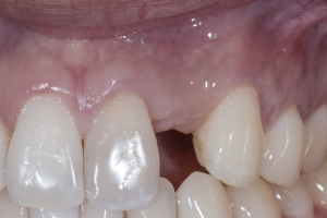 Will Block Bone Grafting X BG 5  Post B44724 Crop 3